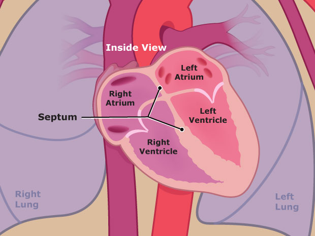 Ventricular Septal Defect (for Teens) - KidsHealth