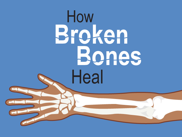 Broken Bones (for Kids) - KidsHealth